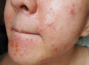 аллергия на куркуму